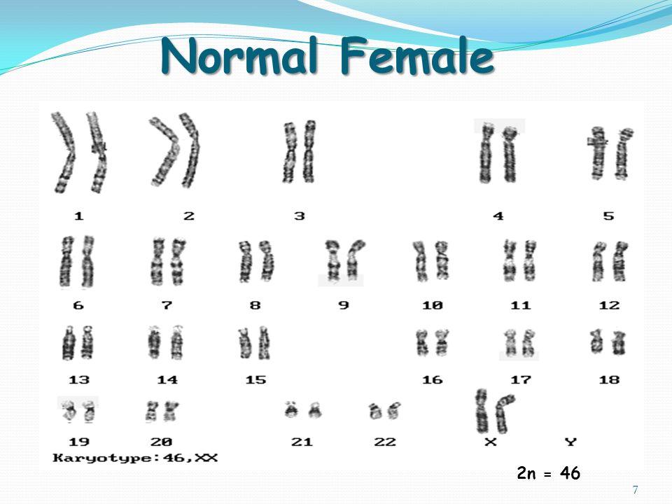 Xyy syndrome diagram