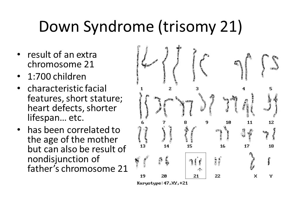 Down Syndrome Trisomy 21 Ppt Download