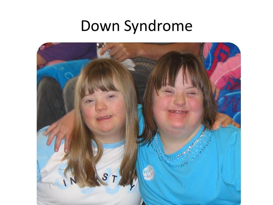 Xxy Syndrome