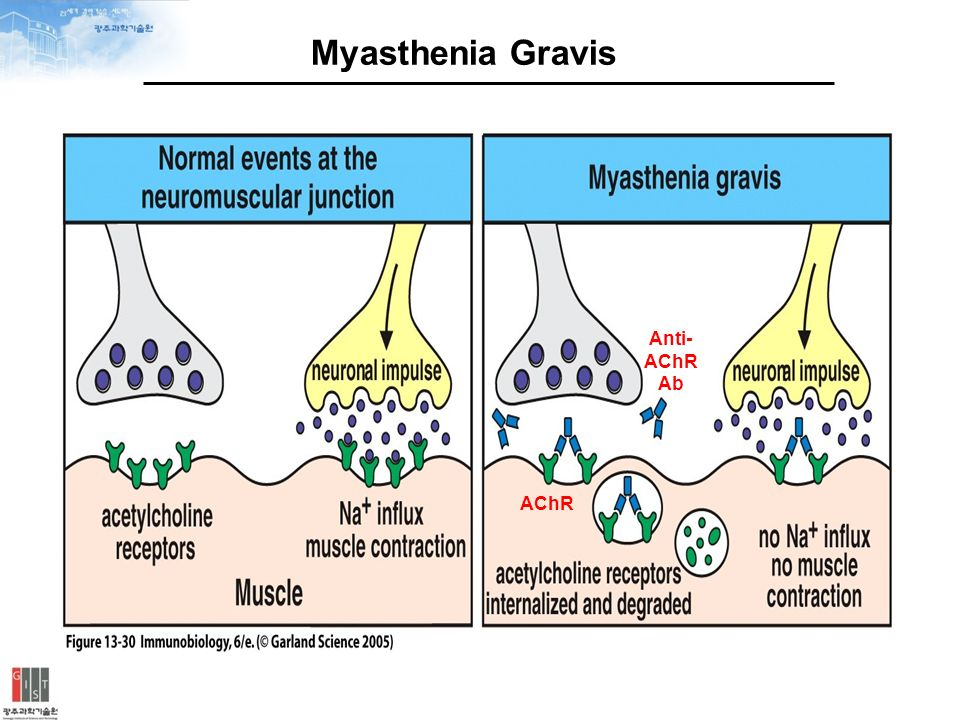 Myasthenia Gravis Blog January 2014