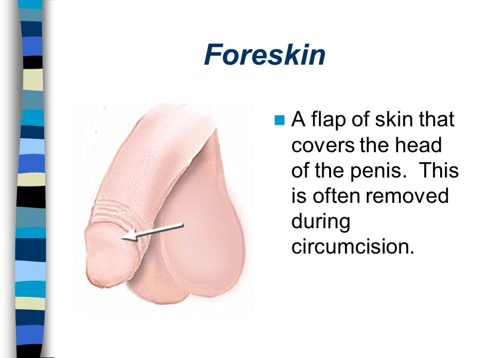 Foreskin A flap of skin that covers the head of the penis.