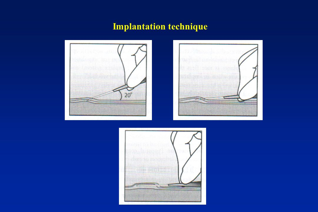 Implantation technique