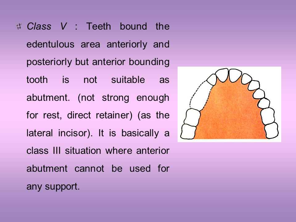 Class V : Teeth bound the edentulous area anteriorly and posteriorly but anterior bounding tooth is not suitable as abutment.