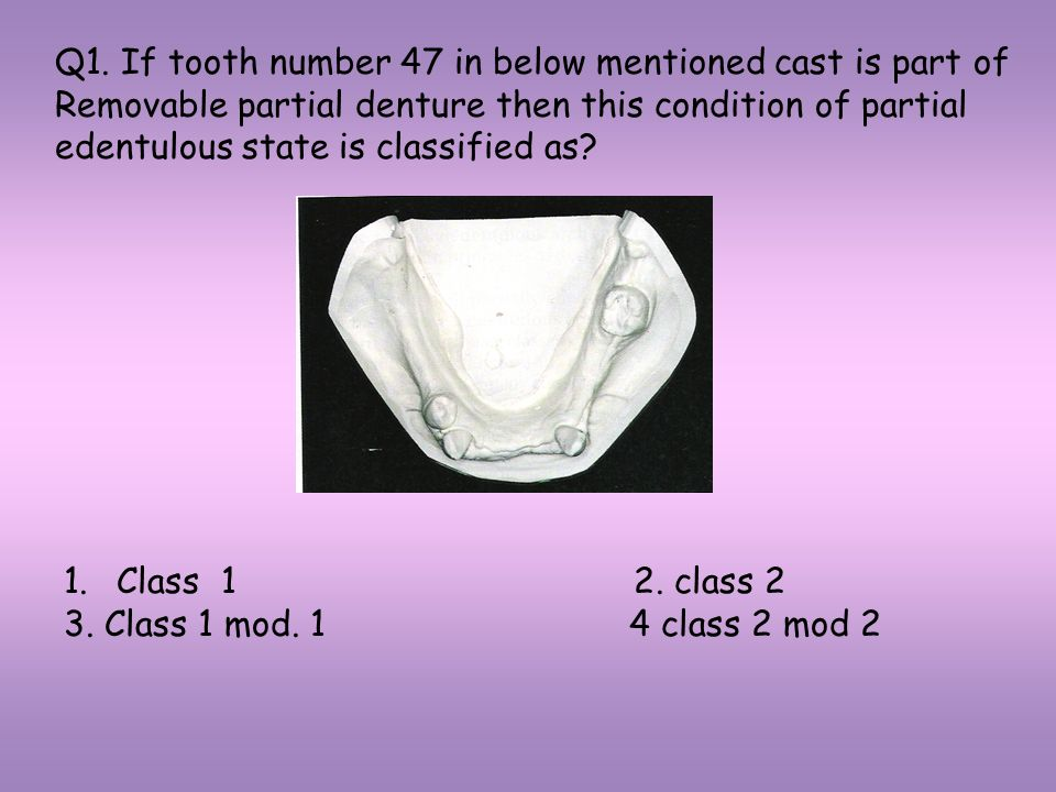 Q1. If tooth number 47 in below mentioned cast is part of Removable partial denture then this condition of partial edentulous state is classified as