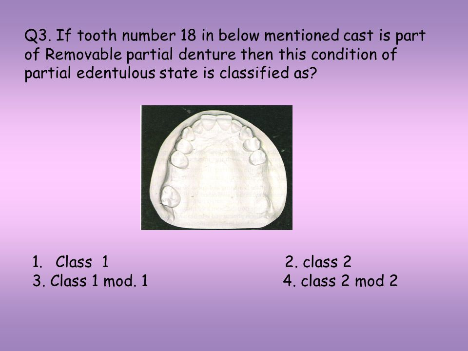 Q3. If tooth number 18 in below mentioned cast is part of Removable partial denture then this condition of partial edentulous state is classified as