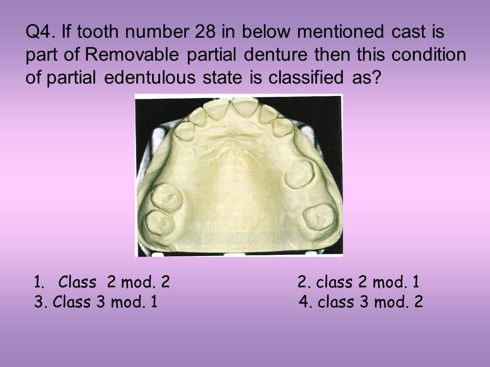 Q4. If tooth number 28 in below mentioned cast is part of Removable partial denture then this condition of partial edentulous state is classified as