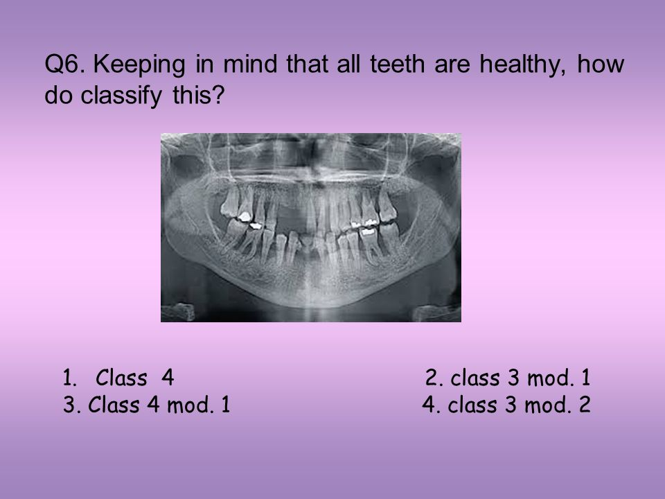 Q6. Keeping in mind that all teeth are healthy, how do classify this