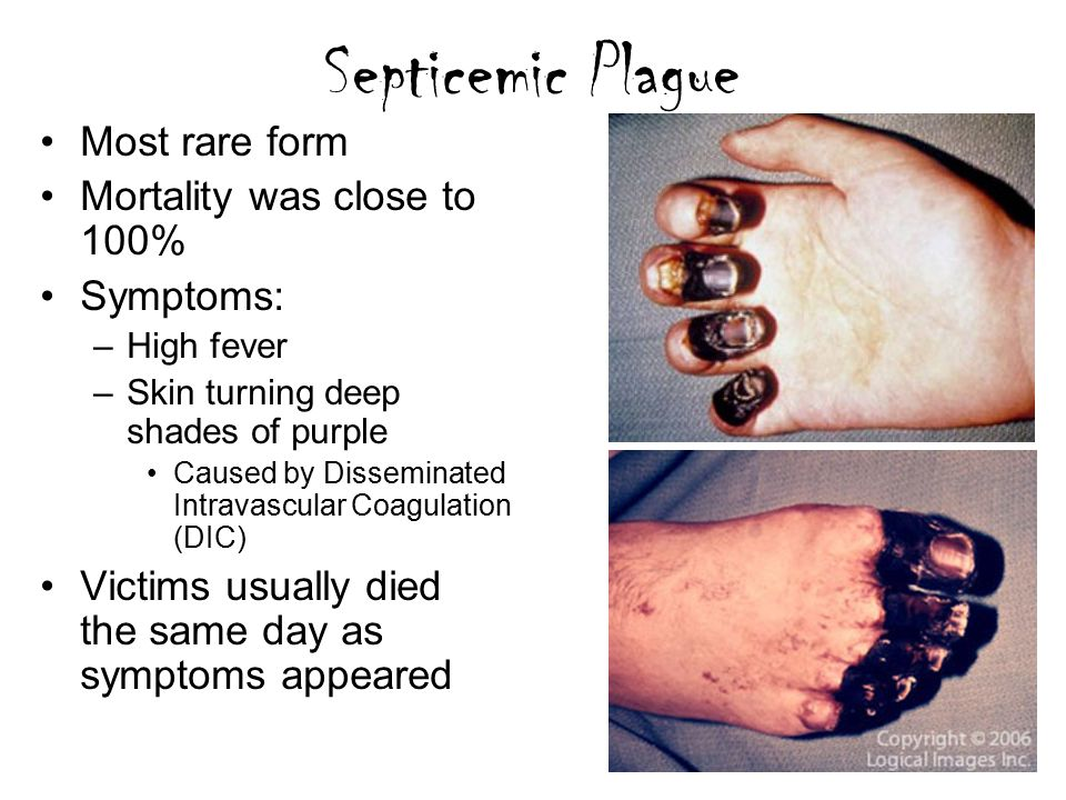 signs and symptoms of the bubonic plague In septicemic plague, skin and other tissues may turn black and die, especially on the fingers, toes and the nose, according to the cdc though plague has few telltale symptoms, doctors can help save lives if they look for these signs: swollen lymph nodes, fever or chills, severe headache, extreme.
