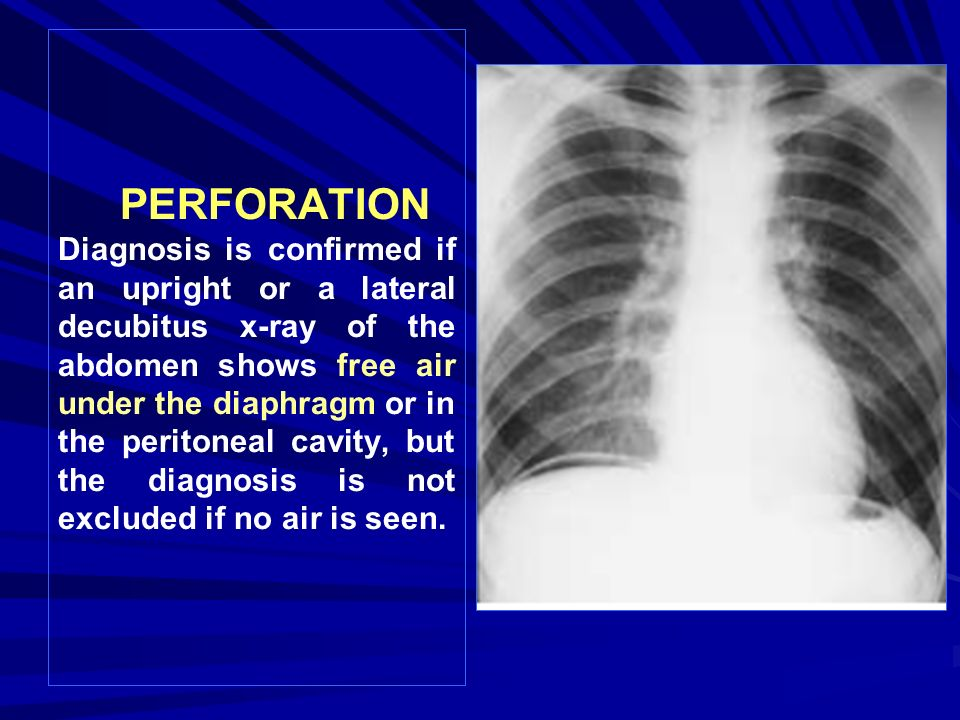 PERFORATION Diagnosis is confirmed if an upright or a lateral decubitus x-ray of the abdomen shows free air under the diaphragm or in the peritoneal cavity, but the diagnosis is not excluded if no air is seen.