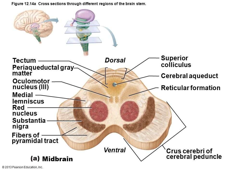 Dr najeeb Brain stem