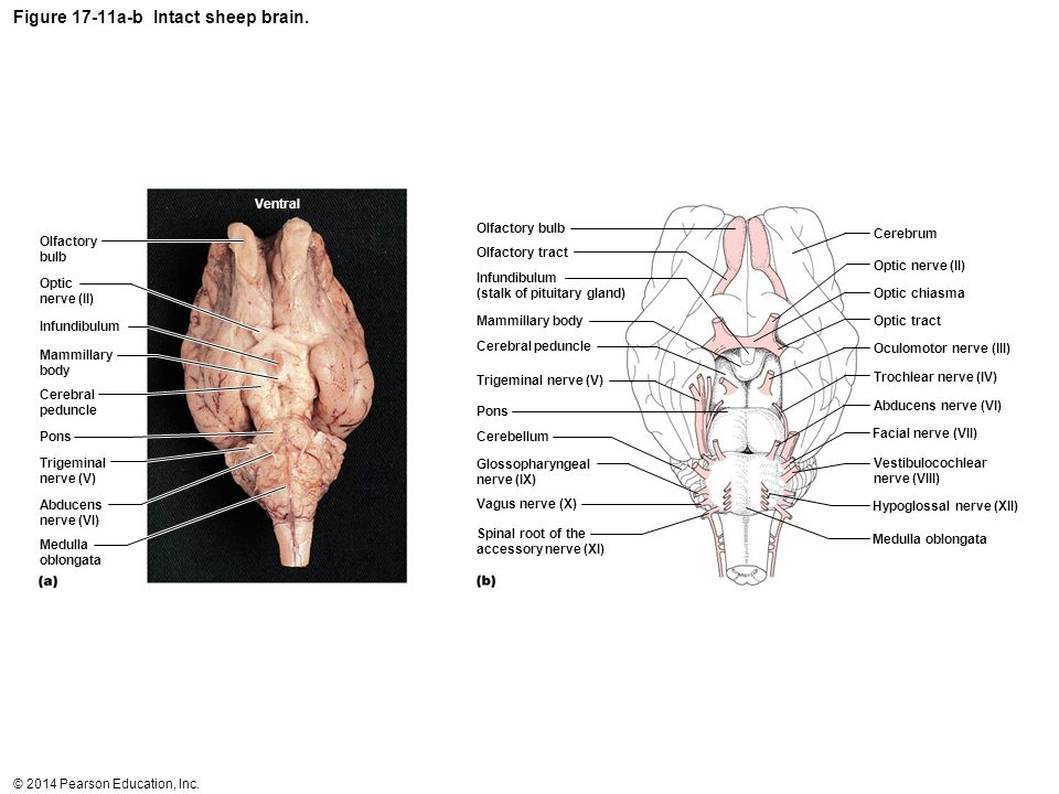 Figure 17-11a-b Intact sheep brain.