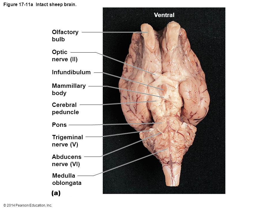 Figure 17-11a Intact sheep brain.