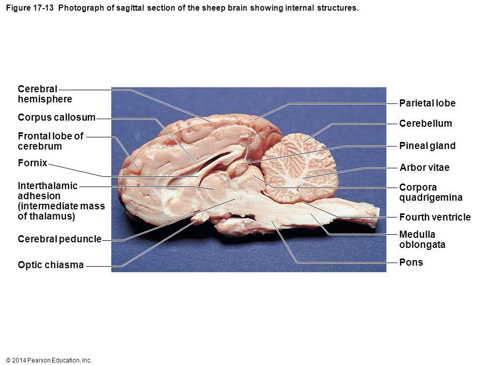 Cerebral hemisphere Parietal lobe Corpus callosum Cerebellum