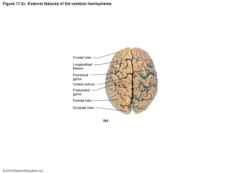 Figure 17-2c External features of the cerebral hemispheres.