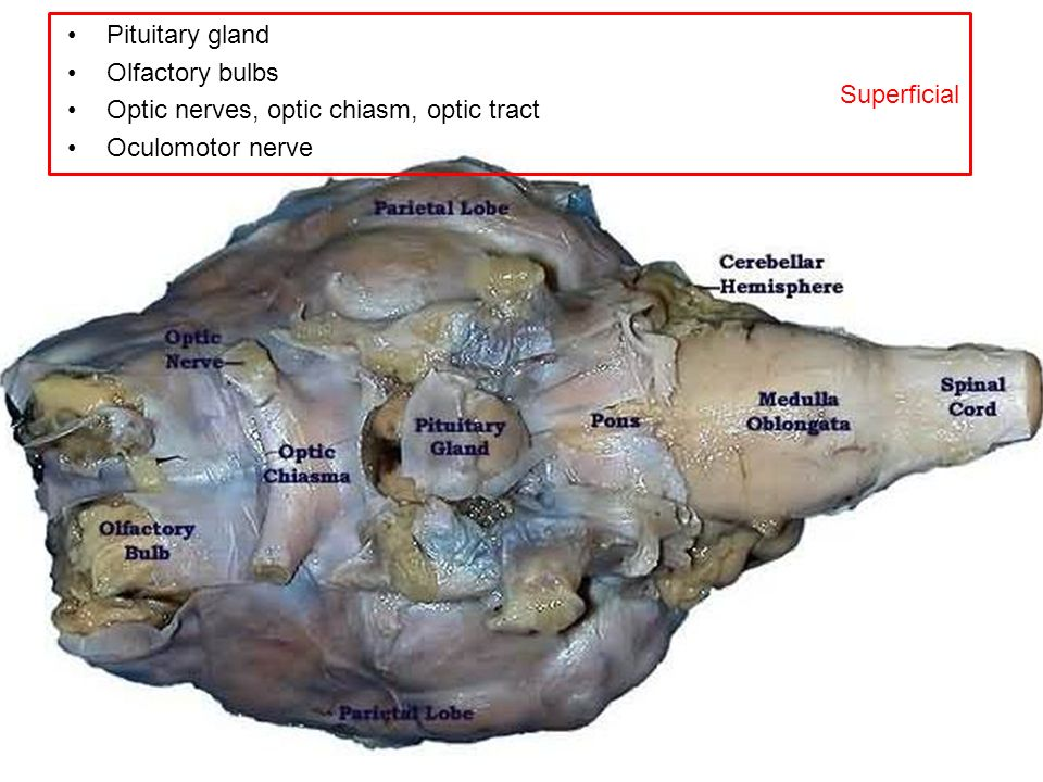 Superficial Pituitary gland. Olfactory bulbs. Optic nerves, optic chiasm, optic tract.
