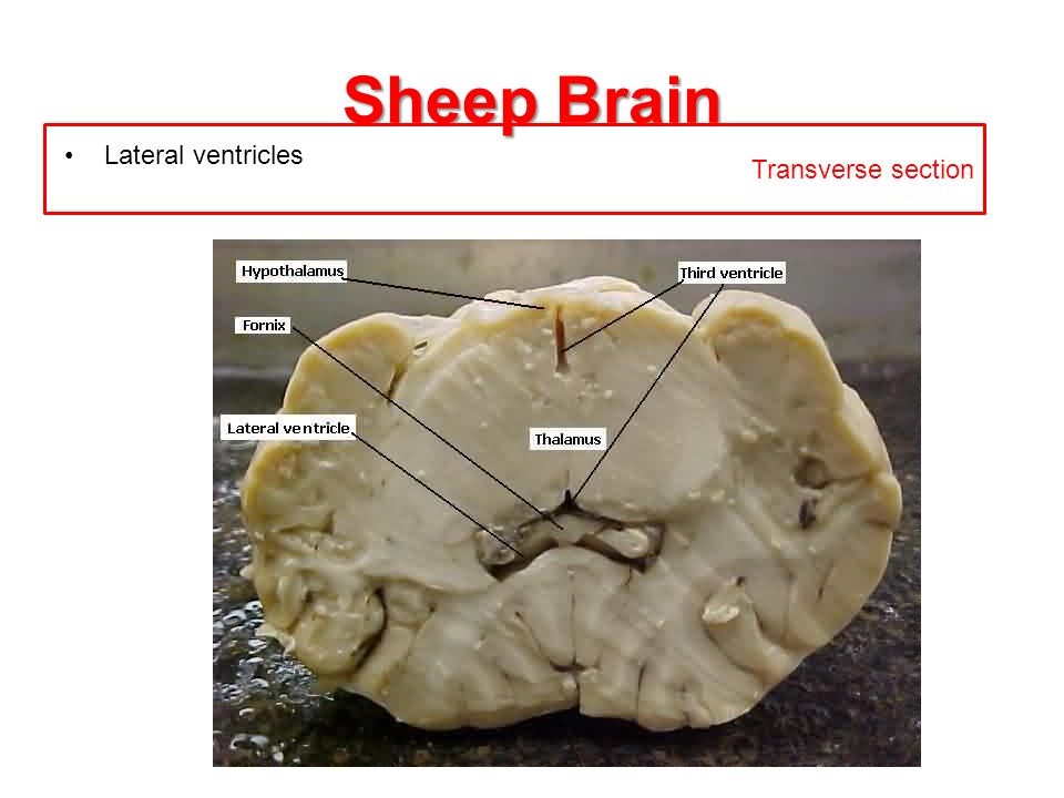 Sheep Brain Transverse section Lateral ventricles