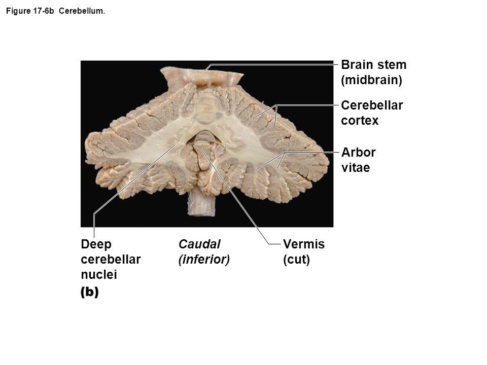 Brain stem (midbrain) Cerebellar cortex Arbor vitae Deep cerebellar