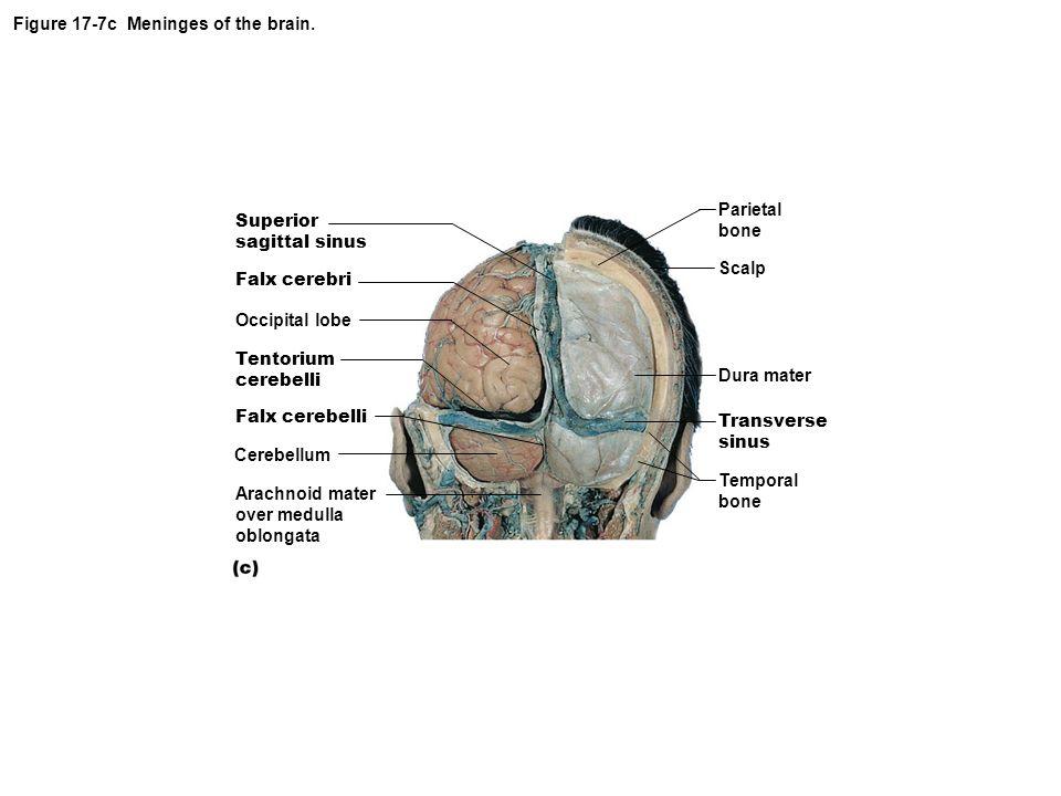 Figure 17-7c Meninges of the brain.