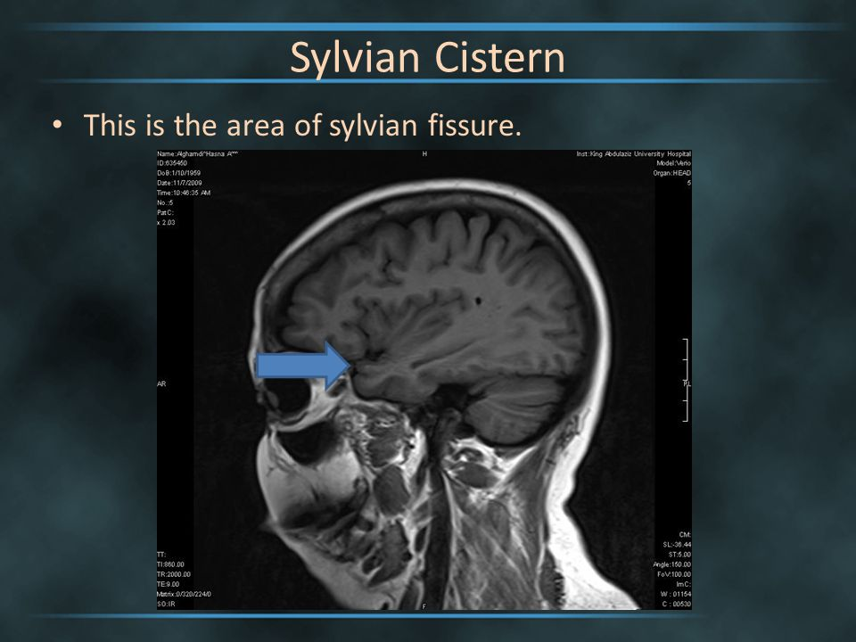 List of Synonyms and Antonyms of the Word: sylvian cistern
