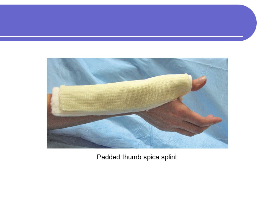 how to make a spica splint