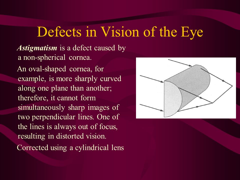Defects in Vision of the Eye