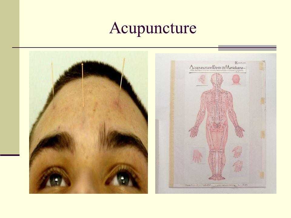 Concord Community Acupuncture
