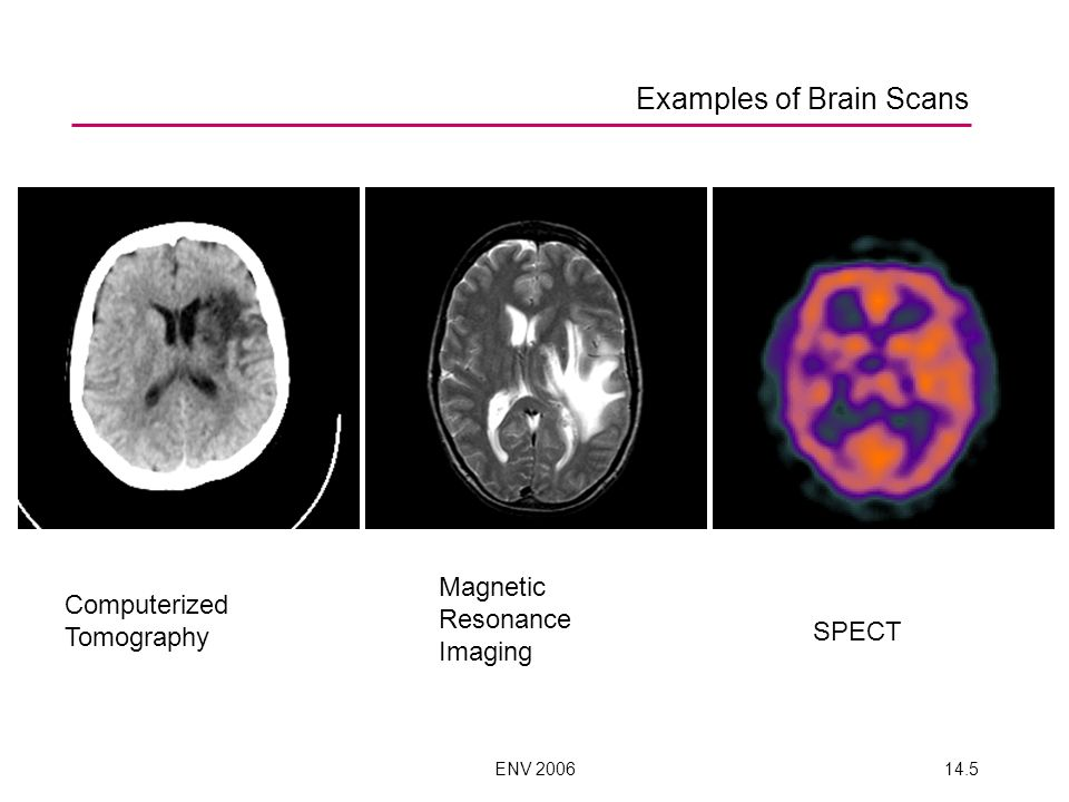 Examples of Brain Scans