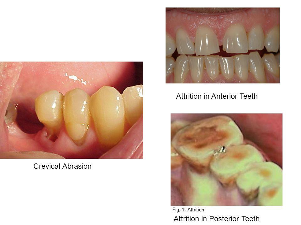 Attrition in Anterior Teeth