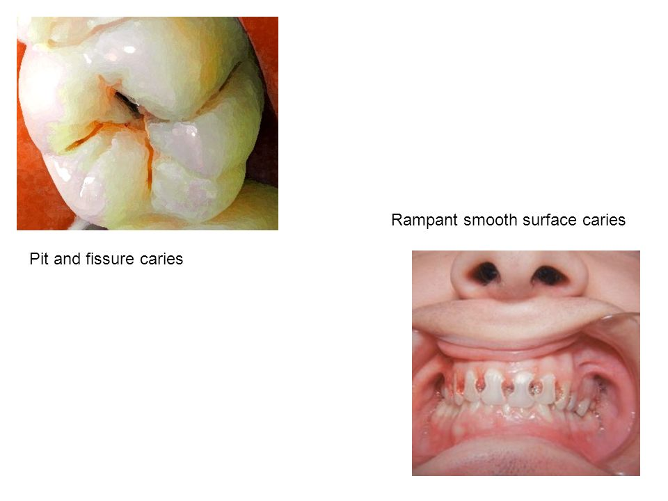 Rampant smooth surface caries