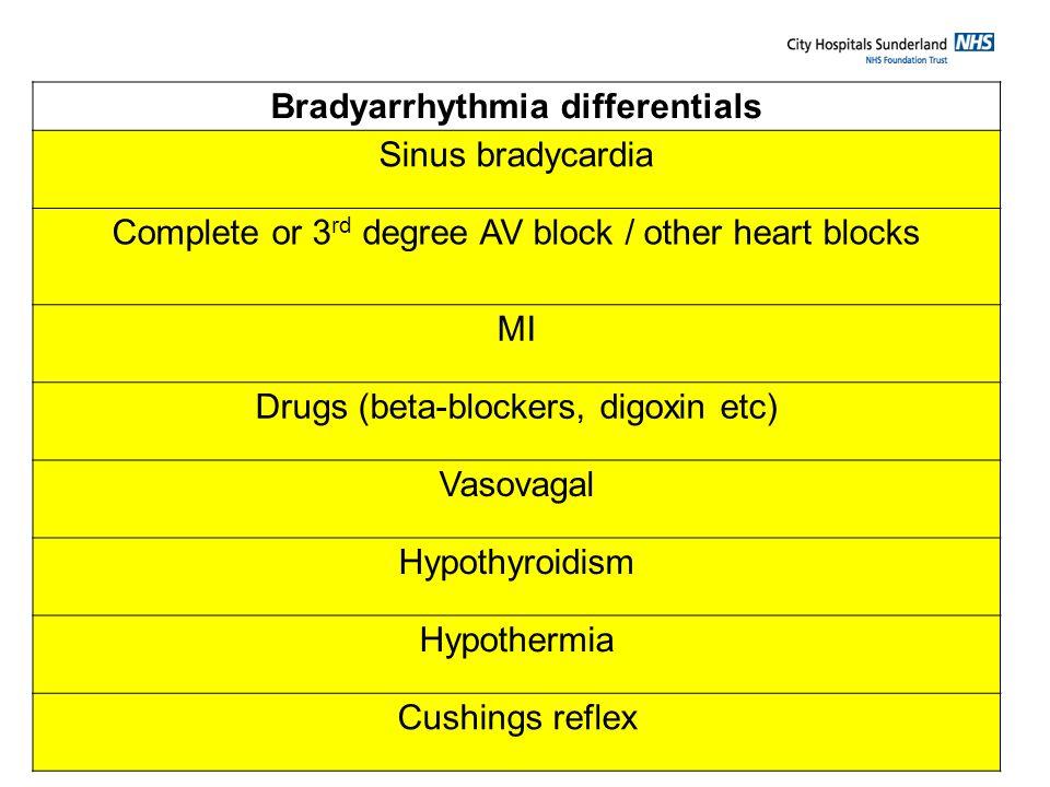 Bradyarrhythmia differentials