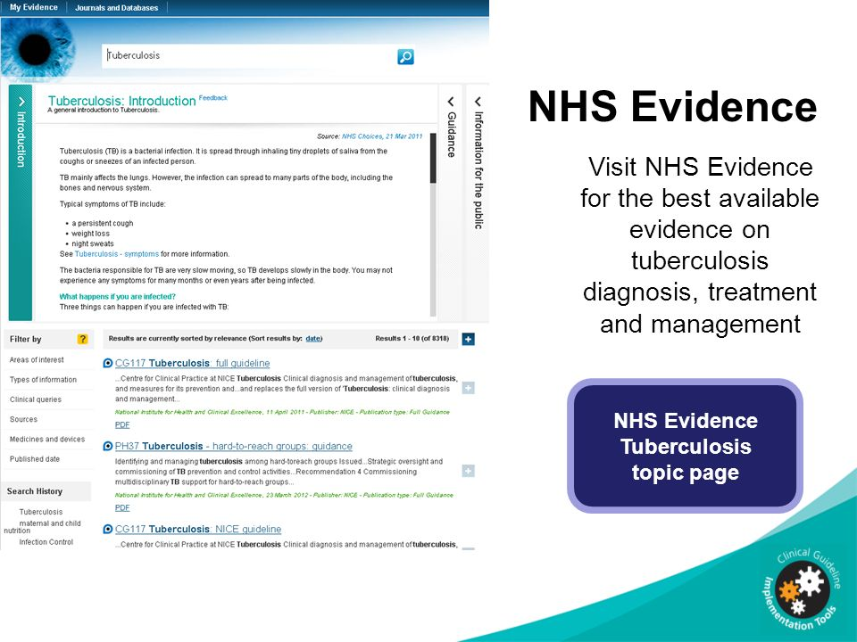 implementing nice guidance ppt  nhs evidence tuberculosis topic page