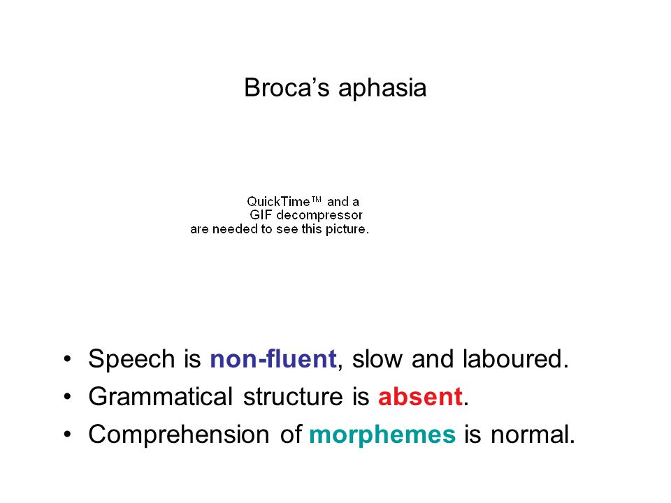 Broca's aphasia Speech is non-fluent, slow and laboured.