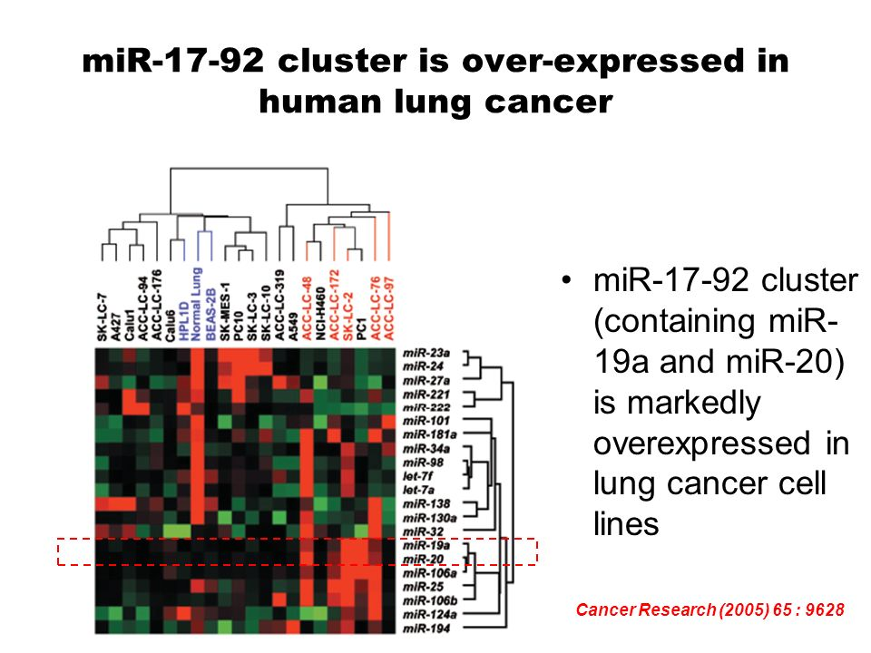 an analysis of lung cancer a carcinoma that develops in the epithelial cells Another reason why cancer often develops resistance to treatment is that a few cancerous cells act as stem cells like stem cell, they acquire self-renewal, heterogeneity, and apoptosis resistance  if the therapies are not assassinating the cancer stem cells (cscs), the tumor will shortly grow back.