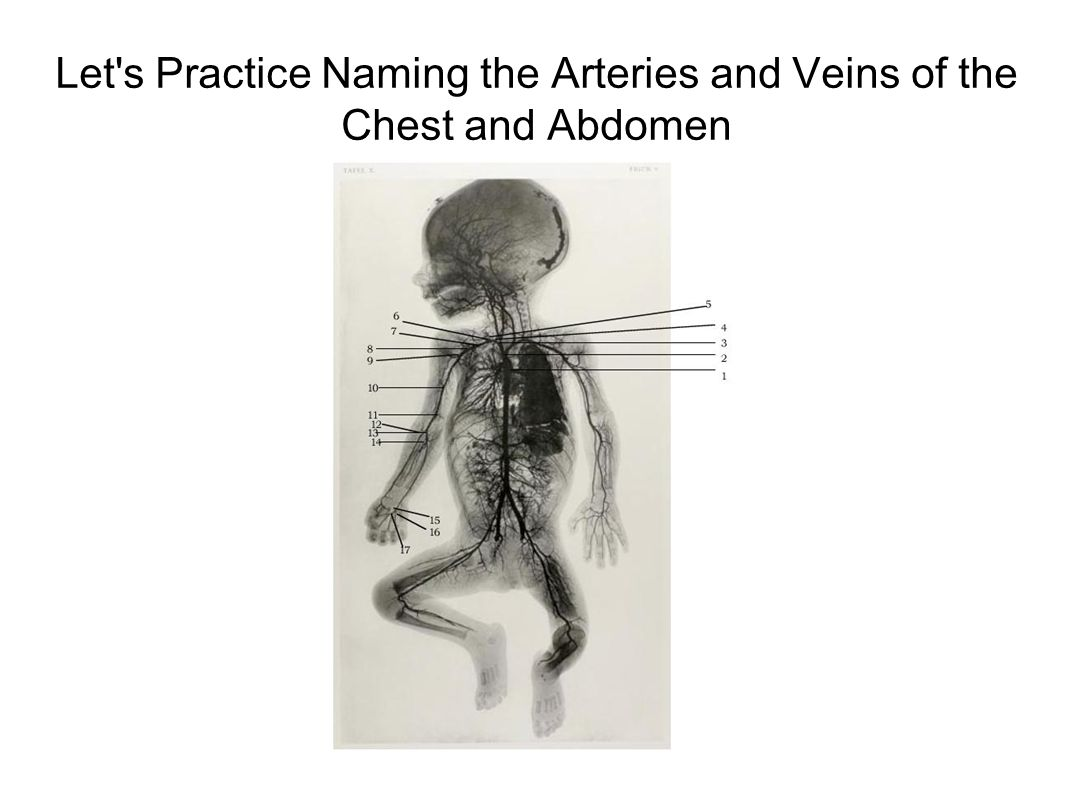 Let s Practice Naming the Arteries and Veins of the Chest and Abdomen