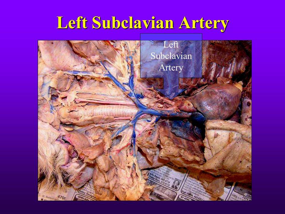 FHC Cat Dissection The Thoracic Cavity. - ppt video online ...