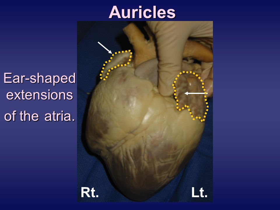 Pig Heart Dissection Ppt Video Online Download