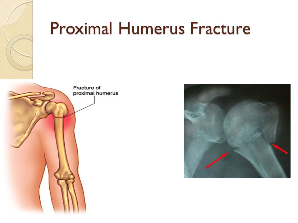 Anatomy of proximal humerus
