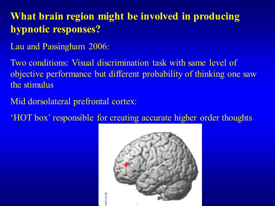 What brain region might be involved in producing hypnotic responses