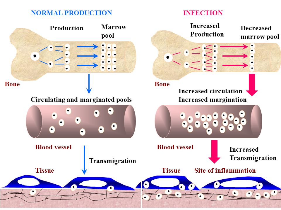 NORMAL PRODUCTION INFECTION. Marrow. pool. Increased. Production. Production. Decreased. marrow pool.