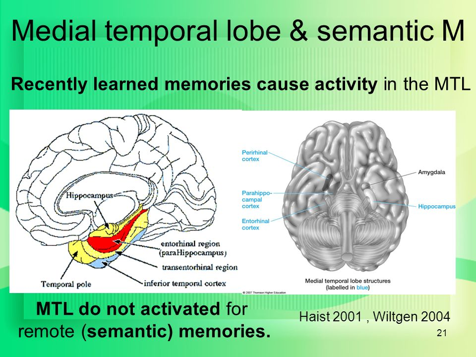 memory in the brain Start studying the brain and memory learn vocabulary, terms, and more with flashcards, games, and other study tools.