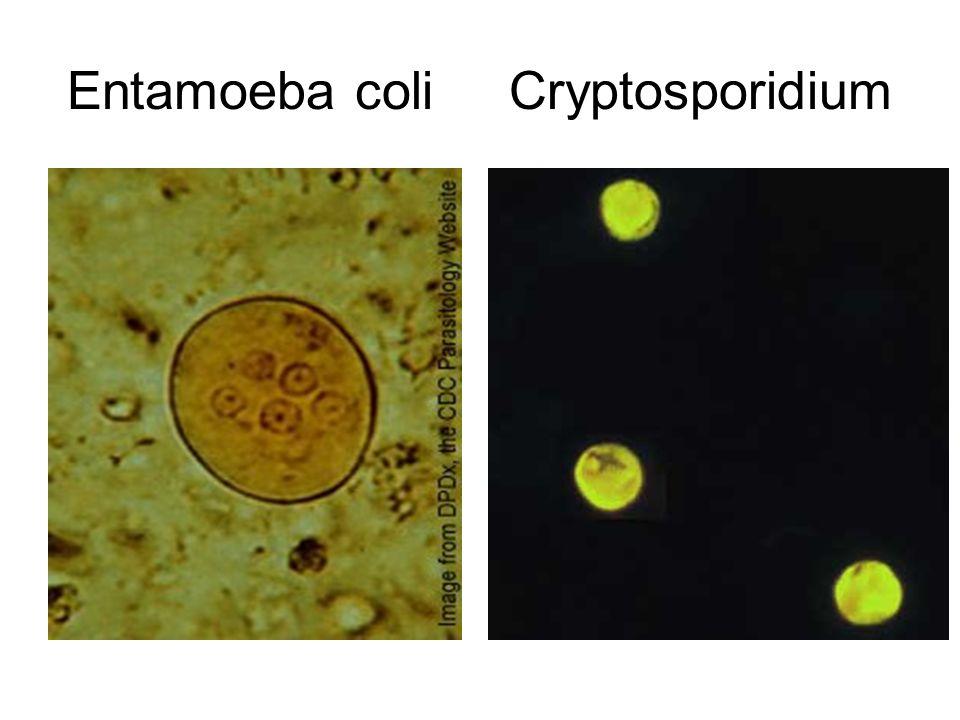 Gi Lab 3 Small Intestine Amp Pancreas Ppt Video Online