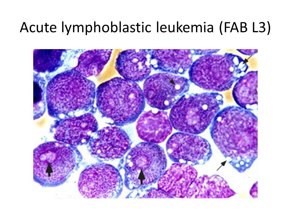 Hematology DR.HASSANALI VAHEDIAN ARDAKANI - ppt video ... Acute Lymphoblastic Leukemia Symptoms