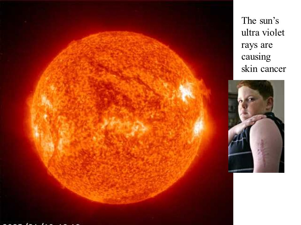 The sun's ultra violet rays are causing skin cancer