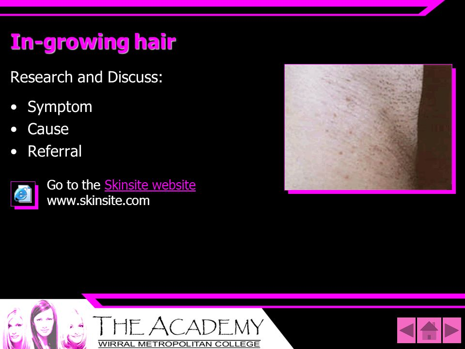 In-growing hair Research and Discuss: Symptom Cause Referral