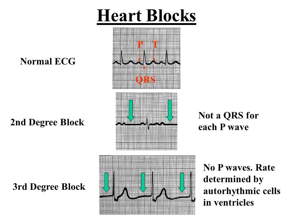 intrinsic cardiac conduction system