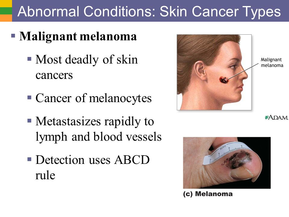 What you should know about melanoma
