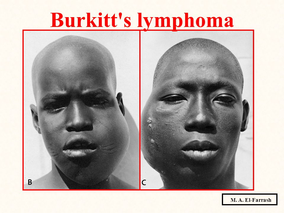 Burkitt s lymphoma M. A. El-Farrash