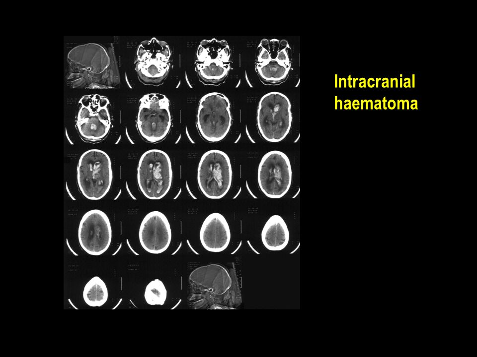 Intracranial haematoma