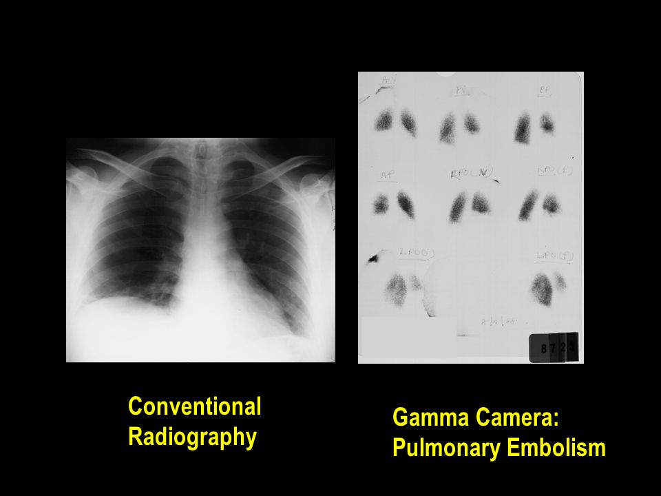 Conventional Radiography Gamma Camera: Pulmonary Embolism