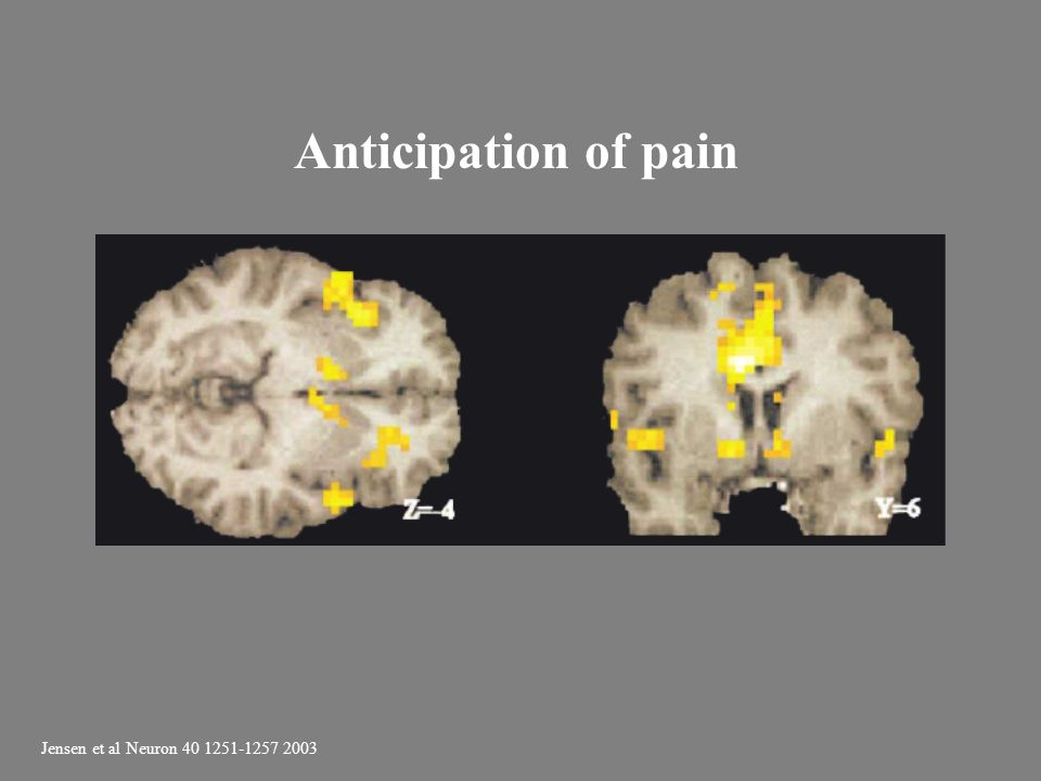 Anticipation of pain Jensen et al Neuron 40 1251-1257 2003